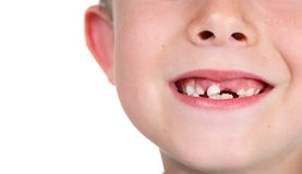 Smiling boy missing teeth Royalty Free Stock Images
