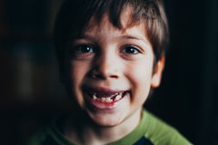 Smiling boy with missing teeth. Portrait of smiling boy with missing teeth against black Royalty Free Stock Images
