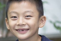 Smiling Boy With Missing Teeth Stock Image