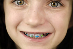Smiling with Braces Royalty Free Stock Image