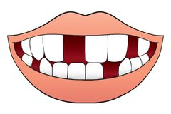 Mouth With Missing Teeth. Smiling cartoon mouth with several missing teeth Royalty Free Stock Images