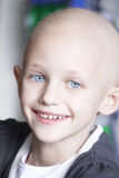 Smiling child with cancer. A caucasian girl with hair loss due to cancer smiling at the camera Royalty Free Stock Image
