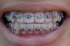 Smiling with confidence. Braces on the teeth of a teenager Stock Image