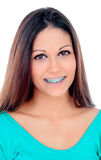 Smiling cool girl with brackets Royalty Free Stock Photos