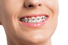 Smiling female mouth with braces on her teeth Royalty Free Stock Image