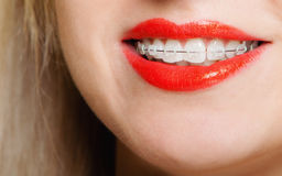 Smiling girl with braces face part teeth straighten, tooth hygiene. Happy smiling girl with dental braces face part - teeth straighten tooth hygiene, dentistry Stock Photography
