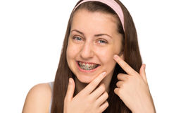 Smiling girl with braces squeezing pimple isolated Stock Image