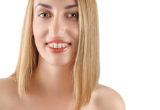Smiling girl with braces Stock Photography