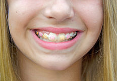 Smiling girl with braces Royalty Free Stock Photo