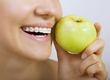 Smiling girl with retainer for teeth and apple Stock Images