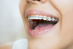 Smiling girl with retainer for teeth. Beautiful smiling girl with retainer for teeth Stock Images
