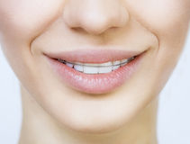 Smiling girl with retainer for teeth. Beautiful smiling girl with retainer for teeth Stock Photography