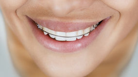 Smiling girl with retainer for teeth. Beautiful smiling girl with retainer for teeth Royalty Free Stock Photography