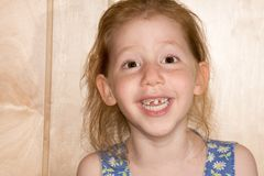 Smiling girl showing her fallen off snaggle teeth. Six year old girl funny girl reveals her changing tooth situation. Her deciduous teeth are beginning to fall Royalty Free Stock Photo