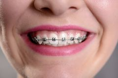 Smiling girl showing her fixed braces Stock Photography