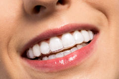 Smiling girl wearing invisible teeth braces. Close up Stock Photos