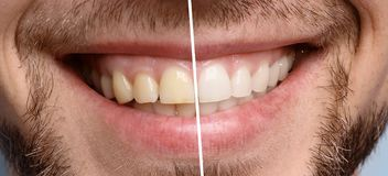 Smiling man before and after teeth whitening procedure. Closeup royalty free stock photography