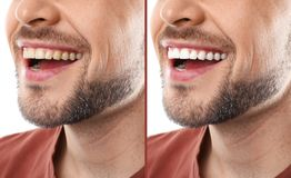 Smiling man before and after teeth whitening procedure royalty free stock photos