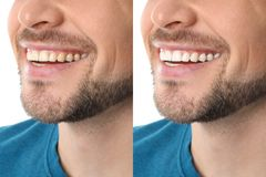 Smiling man before and after teeth whitening procedure royalty free stock photography