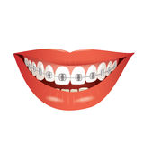 Smiling mouth with braces Stock Photography
