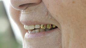 Smiling mouth of mature old woman with false teeth stock video
