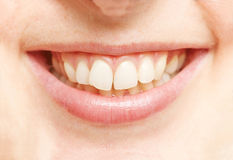 Smiling mouth with white teeth Royalty Free Stock Photography