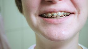 Smiling teen girl with the brackets. At the bathroom stock video footage