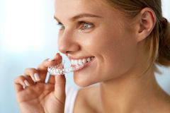 Smiling Woman With Beautiful Smile Using Invisible Teeth Trainer. Orthodontics. Closeup Of Beautiful Happy Smiling Woman With White Smile, Straight Teeth Holding royalty free stock image