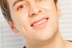 Smiling young man with dental braces Stock Photography