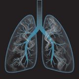 Smoke inside the lung. Inside the human lung when smoking Stock Photography