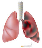 Smoker's lung (with tumor) vs. healthy lung Stock Photos