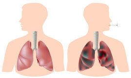Smoker's lung (with tumor) vs. healthy lung Royalty Free Stock Photo