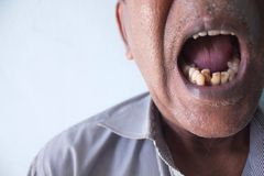 Smoker teeth Royalty Free Stock Image