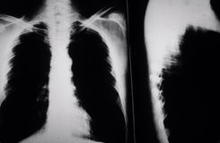 Smokers Lungs. X ray of chest cavity of lungs of a smoker with cancer Royalty Free Stock Photo