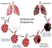 Smoking and Emphysema. Diagram of the process of disease, eps8 Royalty Free Stock Image