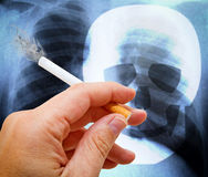 Smoking or not smoking. Man with smoking ciagarette in the hand, in background a x-ray of a human lung and a skull sign Royalty Free Stock Image