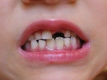 Smorfia dentato di spacco Immagini Stock Libere da Diritti