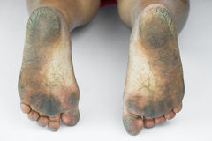 Smutsig fot eller sprucken hälisolat på vit bakgrund, läkarundersökning eller fot hälsa av folket, vårdcentralen för häl eller fo Fotografering för Bildbyråer
