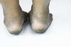 Smutsig fot eller sprucken hälisolat på vit bakgrund, läkarundersökning eller fot hälsa av folket, vårdcentralen för häl eller fo Arkivfoton