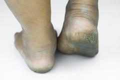 Smutsig fot eller sprucken hälisolat på vit bakgrund, läkarundersökning eller fot hälsa av folket, vårdcentralen för häl eller fo Royaltyfri Bild
