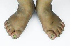 Smutsig fot eller sprucken hälisolat på vit bakgrund, läkarundersökning eller fot hälsa av folket, vårdcentralen för häl eller fo Arkivbild