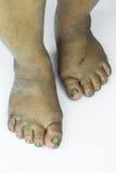 Smutsig fot eller sprucken hälisolat på vit bakgrund, läkarundersökning eller fot hälsa av folket, vårdcentralen för häl eller fo Royaltyfri Fotografi