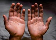 smutsig hand Arkivfoton