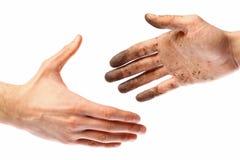 Smutsig handskakning Arkivbilder