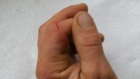 Snijd diep op vinger van mensen Bloedwond in falanx stock videobeelden