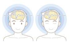 Snilleblixtar avbildar - telepati 01 royaltyfri illustrationer