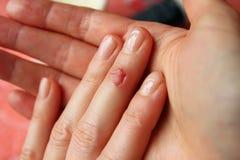 Snittet på hans finger Royaltyfri Fotografi