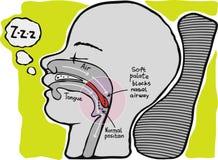 Snoring. Informational graphics,. Mechanism of snoring. Informational graphics, , hand drawn Royalty Free Stock Image