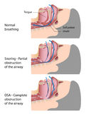 Snoring and sleep apnea. Anatomy of the airway in healthy subject compared to snoring and obstructive sleep apnea, eps10 Royalty Free Stock Image