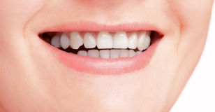 Snow-white smile Royalty Free Stock Photo